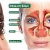 Obat Herbal Sinusitis Paling Ampuh