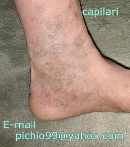 tratamentul venelor varicoase pe lipitori