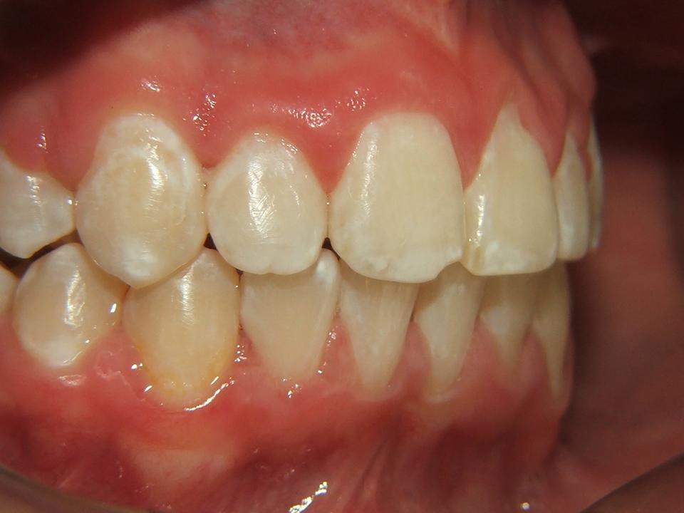 Ortodoncia ortopedia maxilar y odontologia infantil for W de porter ortodoncia