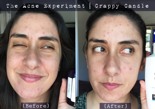Neutrogena Extra Gentle Cleanser Review The Acne