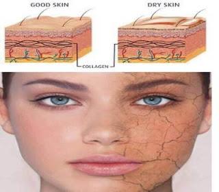 Dried-Skin-Treatment