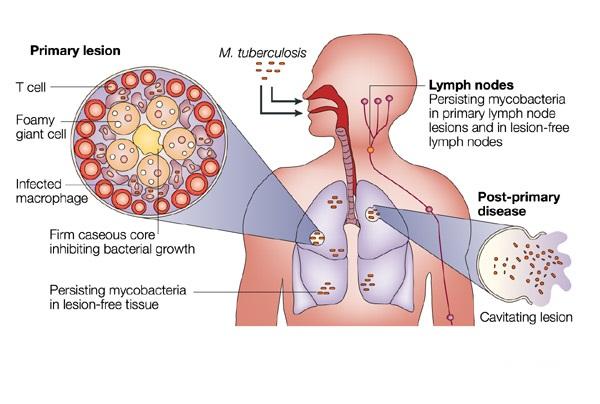 Obat Tradisional Tuntaskan Tuberkulosis