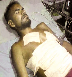 Injured and hospitalized in road accident in India