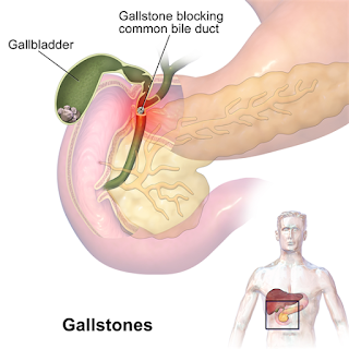 Adenomyomatosis gallbladder icd 10, Symptoms, Causes, Treatment