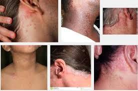gatal akibat jamur pada kepala yang menyebabkan kulit kepala mengelupas