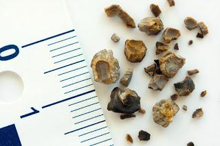 Vitamin Yang Dapat Membantu Atasi Masalah Batu Karang