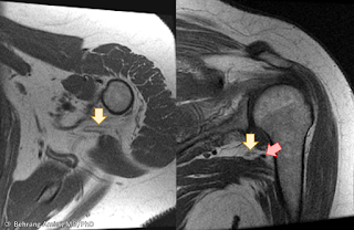 MRI of anatomy of the axillary nerve and its relationship to the joint capsule.