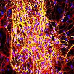 Proteína causa danos neurológicos em Alzheimer