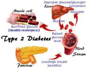 cara mengolah daun sukun untuk obat diabetes, manfaat buah sukun untuk diabetes, efek samping daun sukun, manfaat daun sukun kering, akibat minum daun sukun, manfaat daun sukun untuk ginjal, manfaat daun sukun muda, cara mengolah daun sukun untuk obat jantung