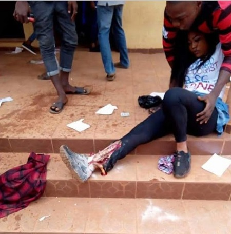 Female Graduate's Leg Crushed While Celebrating After Final Exam (Graphic Photo)