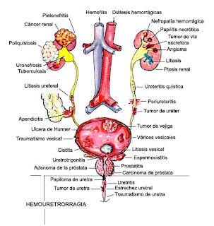 Pengobatan Penyakit Hematuria Secara Alami