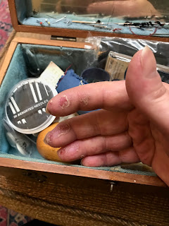 Hand with open sores on fingertips in front of sewing basket