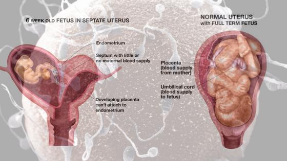 FANEOTRICS 2019: Bicornuate Uterus