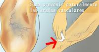 https://steviaven.blogspot.com/2018/06/9-formas-naturales-prevenir-aranas-vasculares.html
