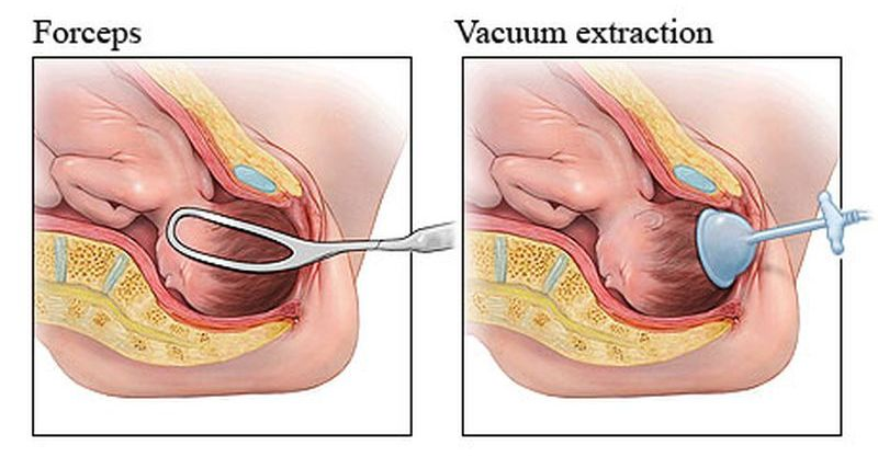 Rotation and Extraction of Baby