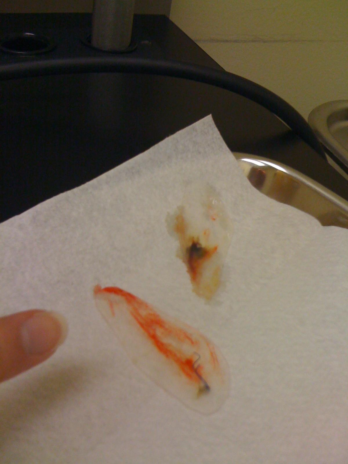 A Nose Adventure: Septoplasty: Day 7: Splints Out!