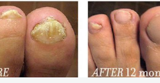 FUNGAL NAILS- FINALLY A REAL CURE IS HERE