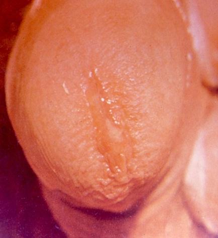 Herpes in urethra