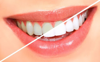 8 Teeth Whitening Methods That gives the best result
