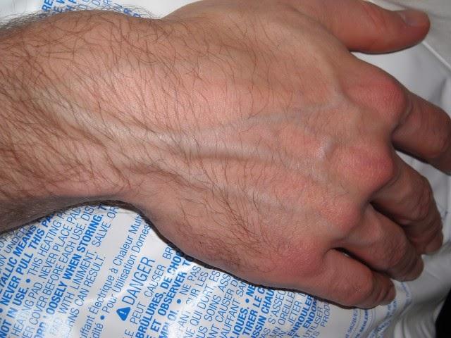 Manos del dorso las saliendo venas de