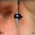 10 Minutes Magic To Get Rid Of Dark Underarms