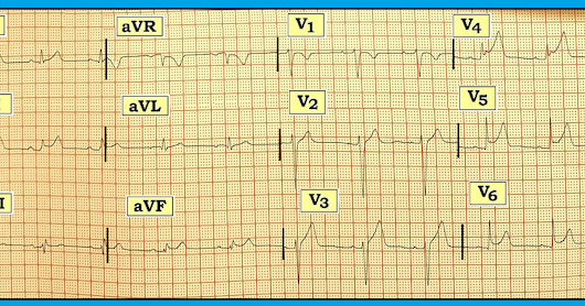 ECG Blog #150 (J-Point - ST Elevation - Pericarditis - Myocardial Bridge - Peaked T Waves - Early Repolarization)