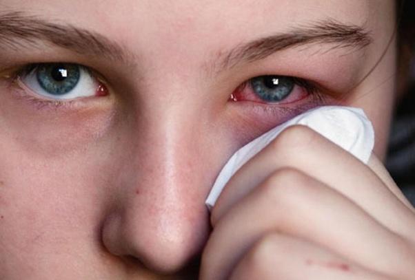 a1c885106d907 O uso das lentes de contato podem causar infecção nos olhos. Mito ou verdade