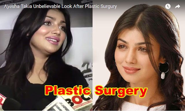 Ayesha Takia After Plastic Surgery