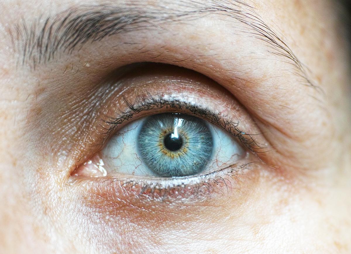 c19ae98eb0 Síndrome del ojo seco, la enfermedad oftalmológica más frecuente