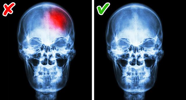 Nguyên nhân và cách điều trị chứng mất ngủ vào ban đêm - Chứng đa xơ cứng