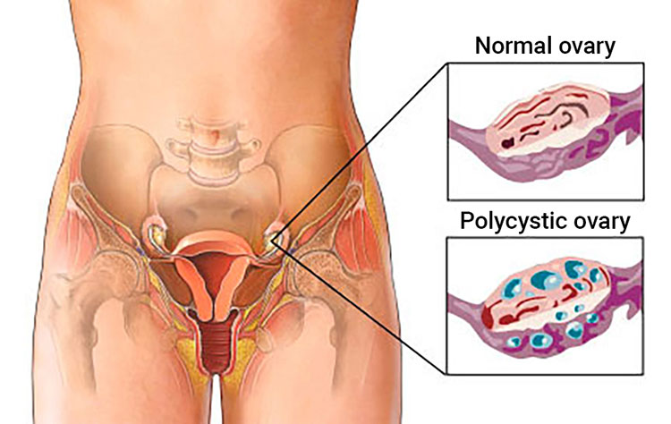 polycystic-ovarian-syndrome