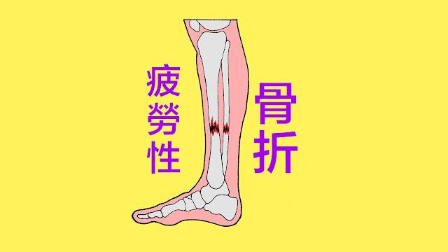 好痛痛 疲勞性骨折 脛骨 腓骨