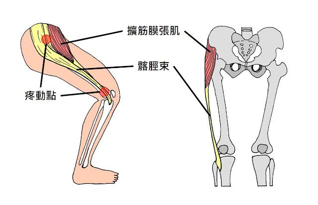 好痛痛 髂脛束症候群 ITBS