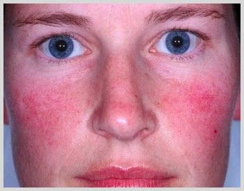 Treatment information facial rosacea really