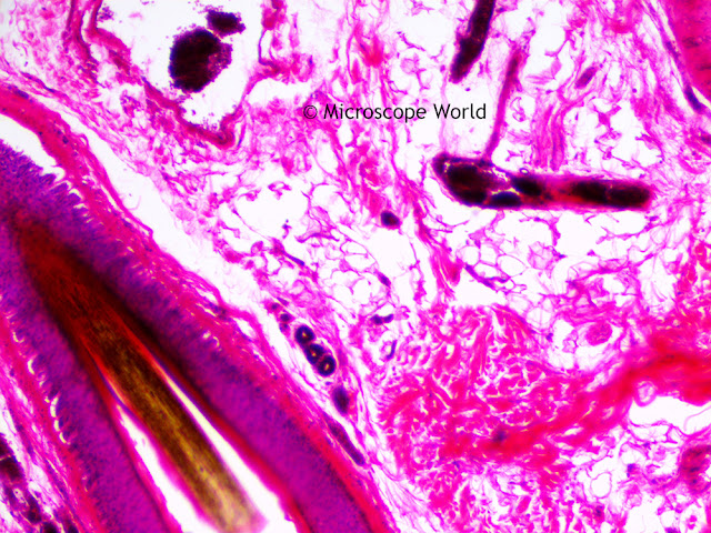 Hair follicule captured under the microscope at 100x.