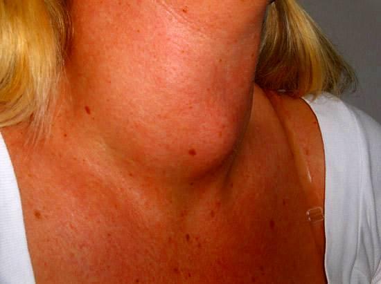 Bocio coto enfermedad glándula tiroides
