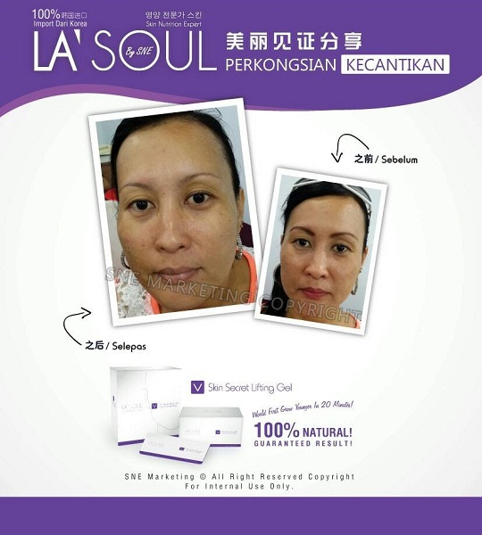 testimoni la' soul lifting gel 7