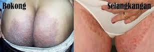 Tips Cara Menghilangkan Gatal Pada Selangkangan Dan Pantat Atau Bokong