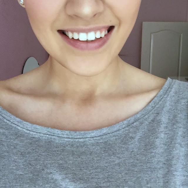 Instant Whites 7 Day Teeth Whitening Kit