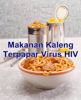 Makanan Kaleng Terpapar Virus HIV