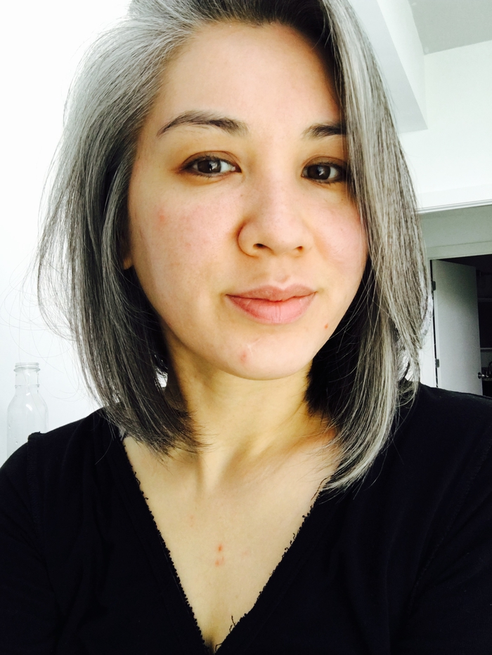 """My story of how I """"cured"""" my hormonal adult acne (w/ before and after pics)"""