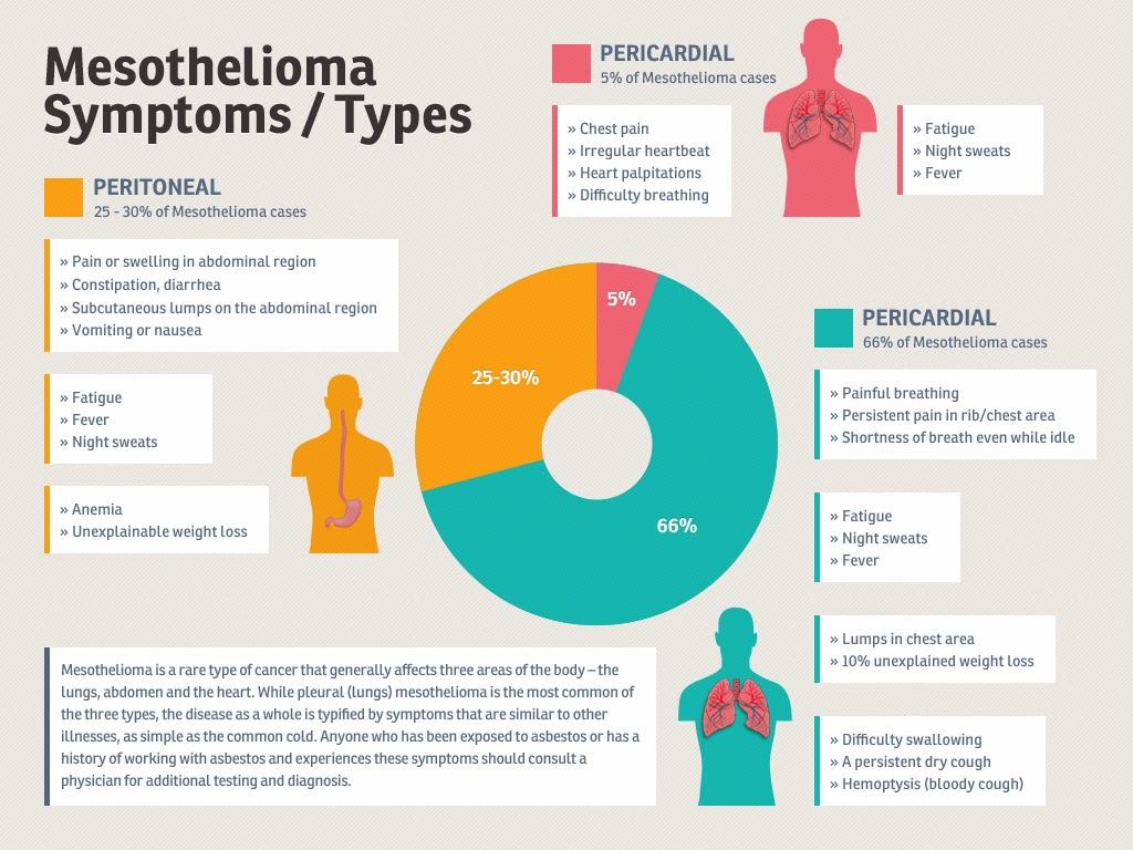 Pleural Mesothelioma Stage 4 Life Expectancy | Mesothelioma