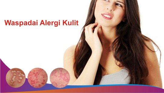 Matcha Mencegah Alergi
