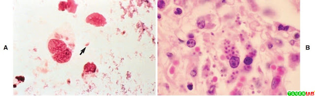 A, Toxoplasma gondii tachyzoites. B, T. gondii tachyzoites in lung tissue.