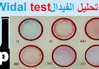الطریقة العملية للتقدير الھیماتوكریت Hematocrit