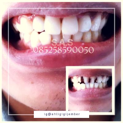 foto hasil veneer gigi berlubang dan hitam