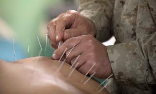 L'acupuncture et les allergies saisonnières