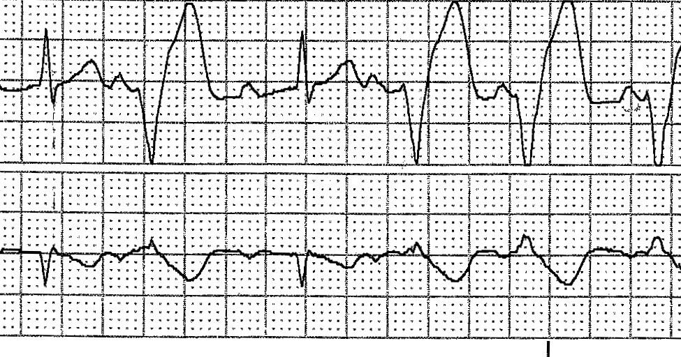 Ecg Rhythms  Isorhythmic Av Dissociation  Sr   Vt