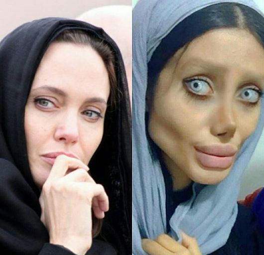 Iranian Woman Who Got Hilarious Result After Undergoing 50 Surgeries To Look Like Angelina Jolie Reveals The Truth Behind Her Action