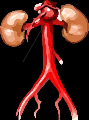 Simptomai ir pilvo aortos stenozės gydymas - Hipertenzija March